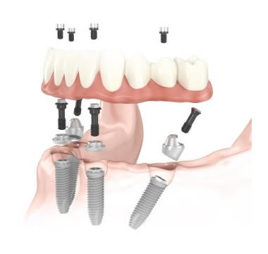 all on four implant tedavisi