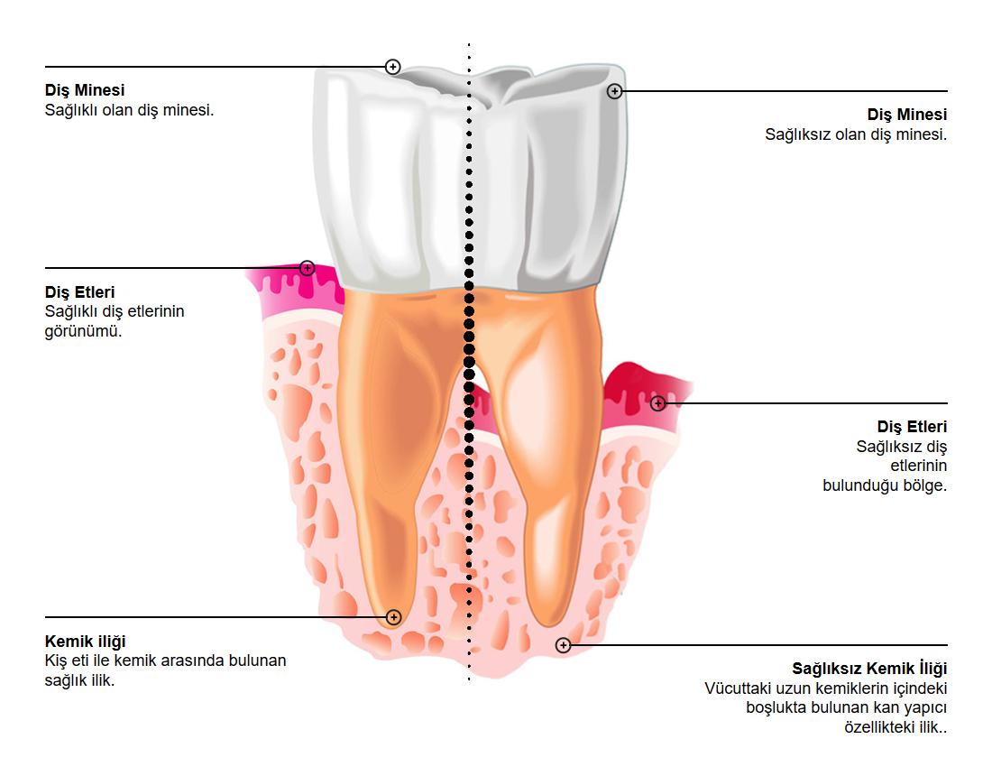 Periodontisis Sağlıklı Sağlıksız Örneği